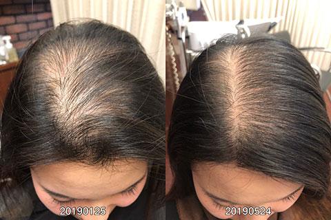 毛髪再生システム 30代女性 3ヶ月