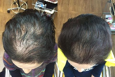 毛髪再生システム 74歳女性 半年